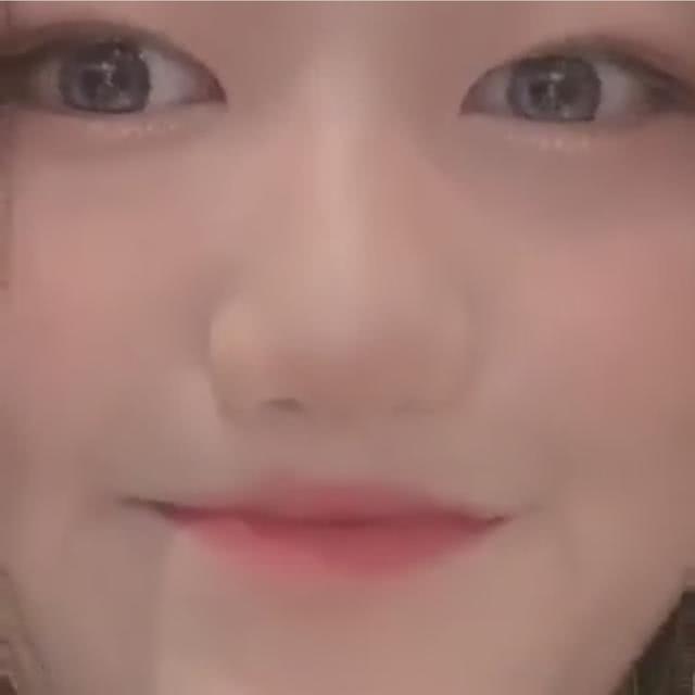Sau phẫu thuật, con gái hở hàm ếch của Vương Phi tự tin khoe nhan sắc đáng gờm, lại còn zoom kỹ khuôn miệng xinh xắn - ảnh 6
