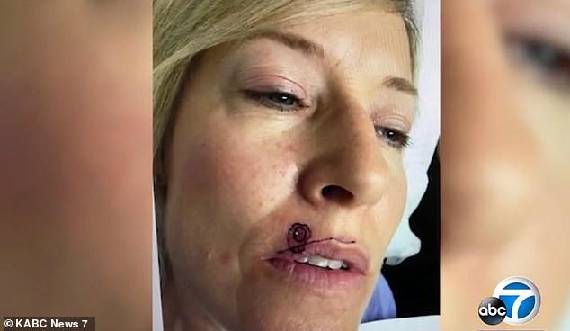 Thêm một trường hợp mọc mụn lạ trên môi sau đó được chẩn đoán mắc bệnh ung thư da ở Mỹ - ảnh 1