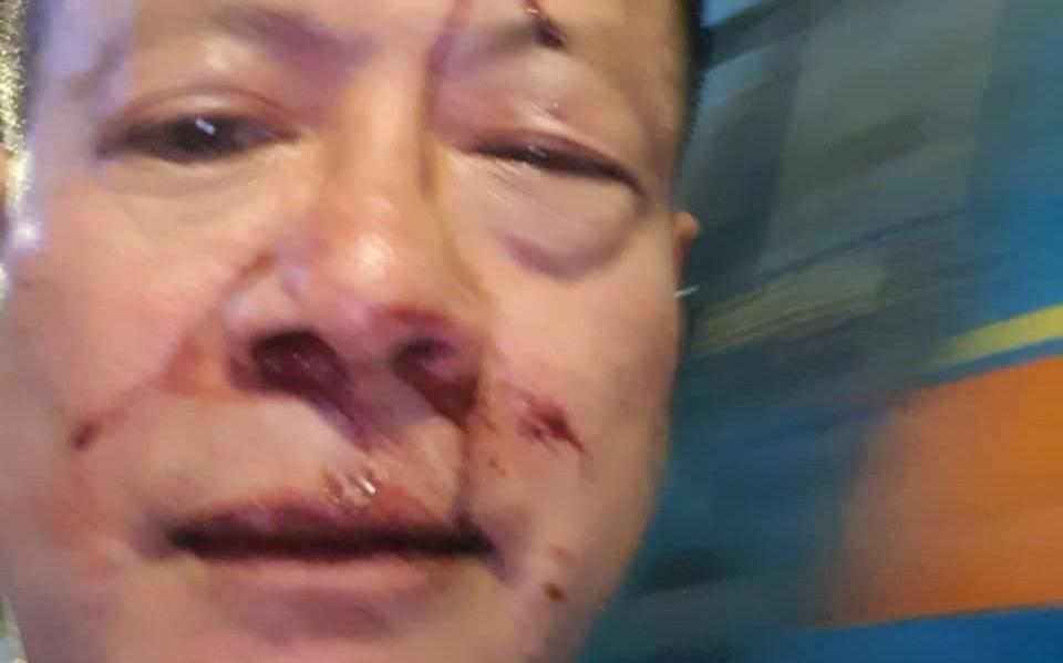 Nhóm thanh niên đánh Việt Kiều Đức trọng thương trong quán karaoke ở Sài Gòn
