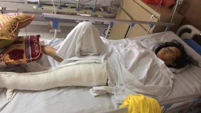 Hà Nội: Nam thanh niên lùi xe khiến người phụ nữ trọng thương - ảnh 1
