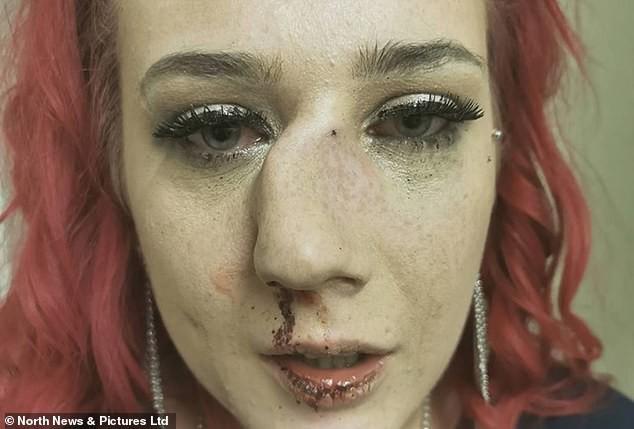 Đang đi trên đường, người đẹp bị kẻ lạ mặt buông lời trêu đùa rồi lao vào hành hung đến nỗi mũi bị gãy, lệch hẳn một bên - ảnh 1