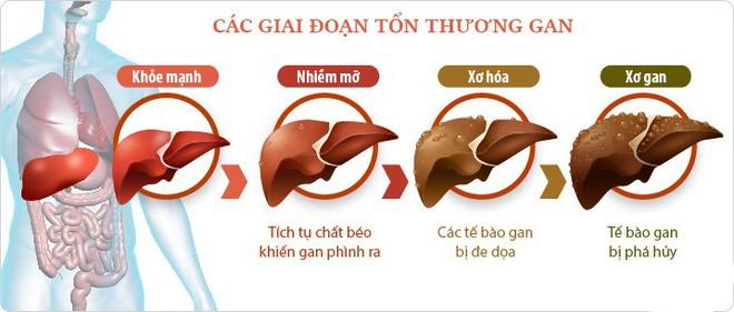 Đường ruột tự sinh ra rượu: Hội chứng kỳ lạ khiến nhiều người ăn cơm cũng say và mắc bệnh gan như người nghiện rượu - ảnh 2