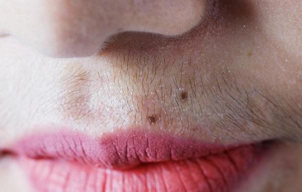 Nữ giới mắc bệnh phụ khoa thường gặp phải 5 triệu chứng trên khuôn mặt, check xem bạn có gặp phải triệu chứng nào hay không - ảnh 1