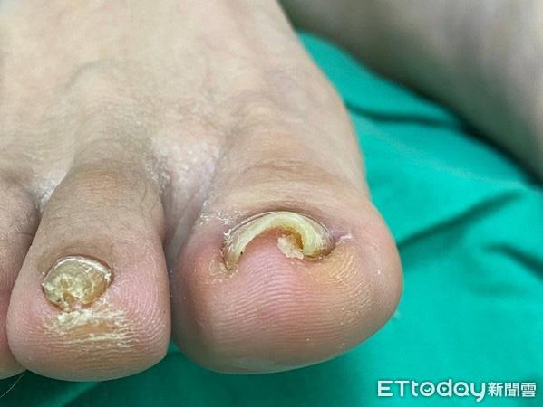 Bị đau ngón chân suốt 6 năm trời, người phụ nữ 39 tuổi đi khám mới phát hiện móng đã ăn sâu vào thịt - Ảnh 1.