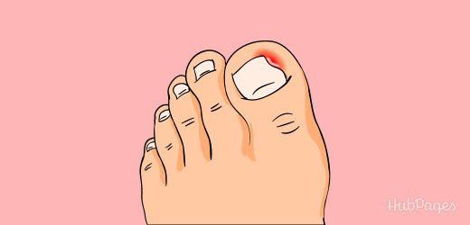 Bị đau ngón chân suốt 6 năm trời, người phụ nữ 39 tuổi đi khám mới phát hiện móng đã ăn sâu vào thịt - Ảnh 2.