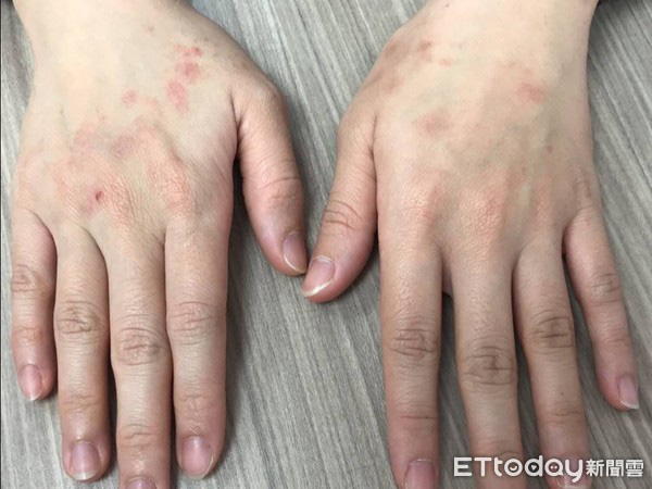 Lạm dụng nước rửa tay khô trong mùa dịch COVID-19: chuyên gia cảnh báo có thể gây tổn thương đến đôi tay - Ảnh 2.