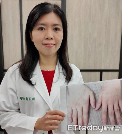 Lạm dụng nước rửa tay khô trong mùa dịch COVID-19: chuyên gia cảnh báo có thể gây tổn thương đến đôi tay - Ảnh 1.