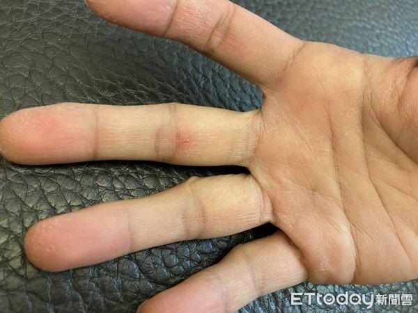 Lạm dụng nước rửa tay khô trong mùa dịch COVID-19: chuyên gia cảnh báo có thể gây tổn thương đến đôi tay - Ảnh 6.
