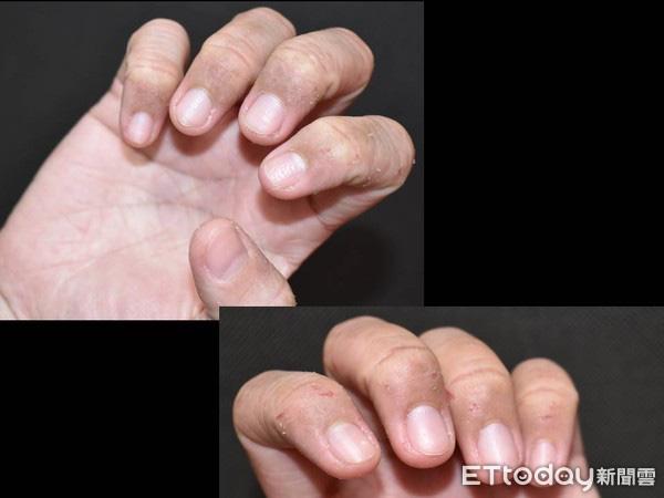 Lạm dụng nước rửa tay khô trong mùa dịch COVID-19: chuyên gia cảnh báo có thể gây tổn thương đến đôi tay - Ảnh 5.