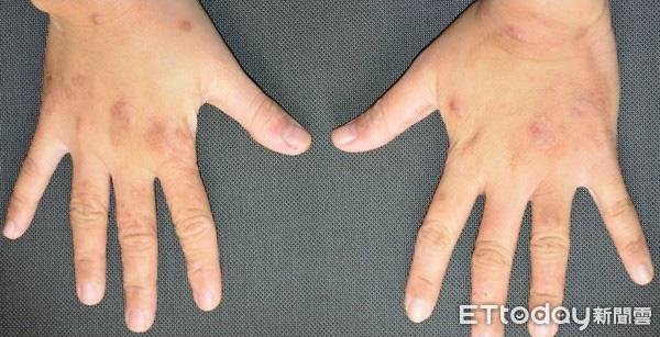 Lạm dụng nước rửa tay khô trong mùa dịch COVID-19: chuyên gia cảnh báo có thể gây tổn thương đến đôi tay - Ảnh 7.