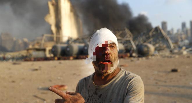 Tôi mất tất cả rồi: Bi kịch kép của người Lebanon sau vụ nổ chấn động, thảm họa nối tiếp thảm họa - Ảnh 5.