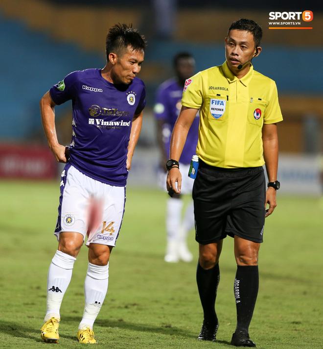 Cựu tuyển thủ Việt Nam chảy máu ướt đẫm quần khiến tất cả hốt hoảng ngày Hà Nội FC đại thắng - Ảnh 2.