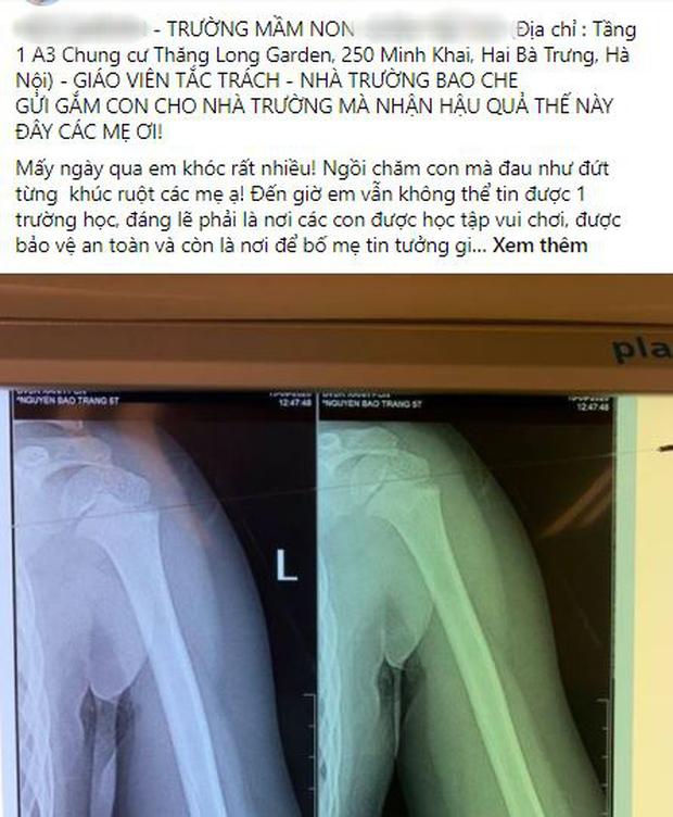 Nhà trường lên tiếng sau vụ bé gái 5 tuổi ngã gãy tay, nguy cơ bị liệt khi đang trong giờ học - Ảnh 1.