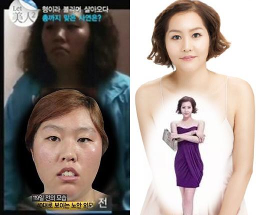 Thêm 1 ca thẩm mỹ khiến cả nước Hàn choáng váng 8