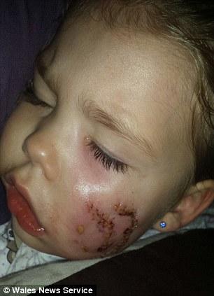 Bé gái 3 tuổi bị chó cắn nát 1 bên mặt 1