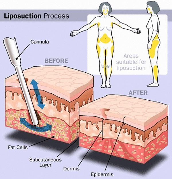 Cận cảnh quy trình phẫu thuật thẩm mỹ - hút mỡ bụng 13