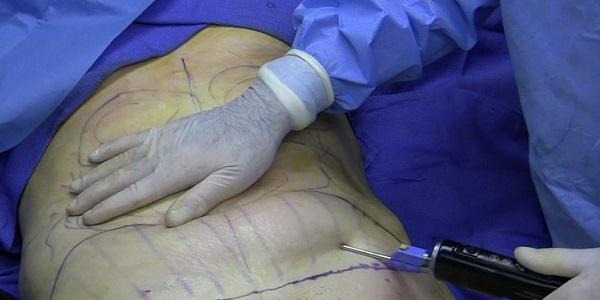 Cận cảnh quy trình phẫu thuật thẩm mỹ - hút mỡ bụng 3