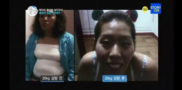 Thêm 1 ca thẩm mỹ khiến cả nước Hàn choáng váng 1