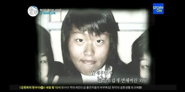 Thêm 1 ca thẩm mỹ khiến cả nước Hàn choáng váng 4