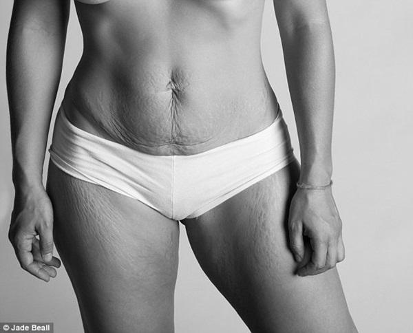 Hình ảnh chân thực về cơ thể của những người phụ nữ sau khi sinh 8