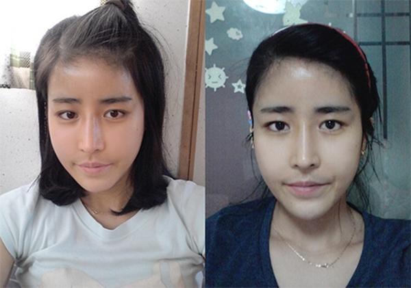 Cô gái được bác sĩ cầu hôn sau ca phẫu thuật thẩm mỹ vì quá xinh đẹp 7