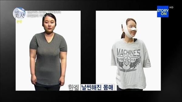 Những ca phẫu thuật thẩm mỹ gây kinh ngạc nhất năm 2014 22