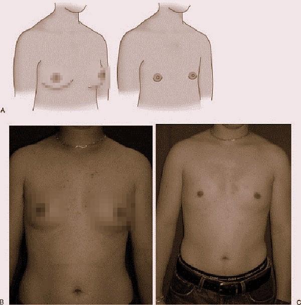 Cận cảnh quá trình phẫu thuật chuyển giới từ nữ sang nam 7