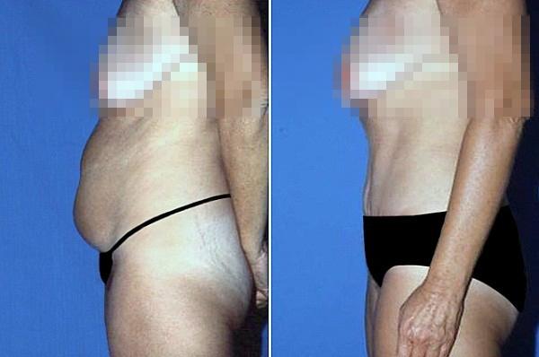 Cận cảnh quy trình phẫu thuật thẩm mỹ - hút mỡ bụng 12