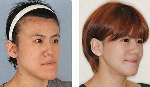 Hàn Quốc: Cô gái xấu xí bỗng chốc trở thành người đẹp 9