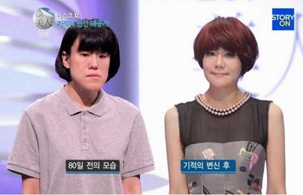 Hàn Quốc: Cô gái xấu xí bỗng chốc trở thành người đẹp 10