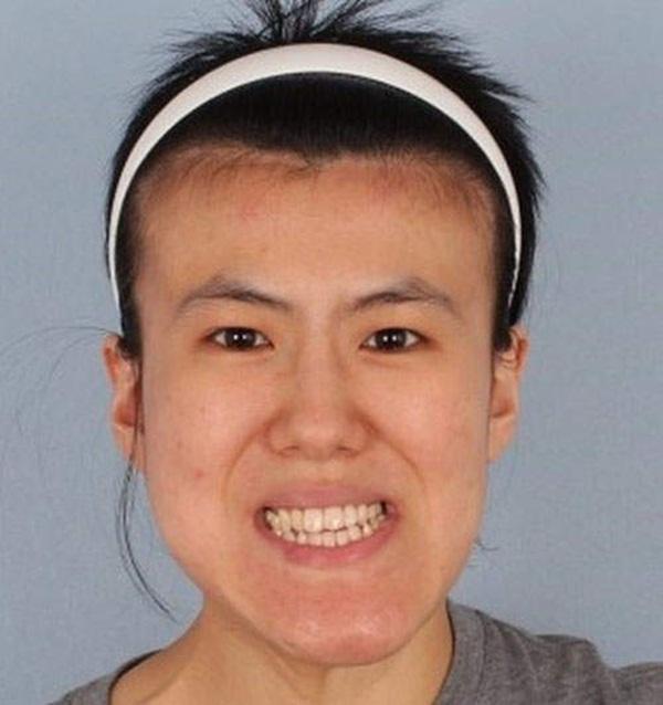 Hàn Quốc: Cô gái xấu xí bỗng chốc trở thành người đẹp 2