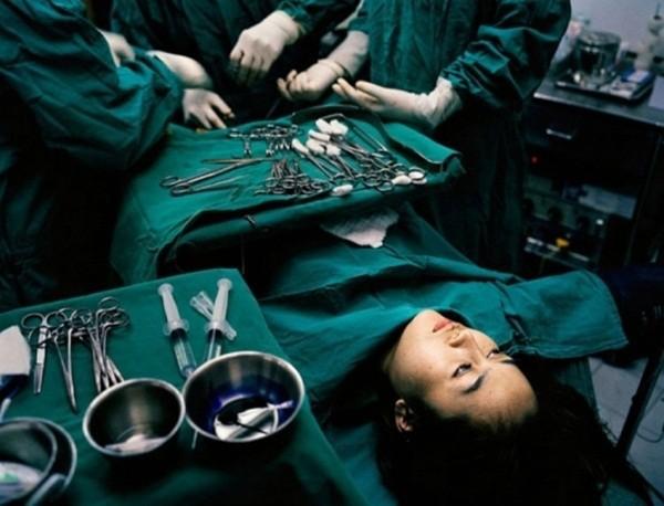 Cận cảnh quá trình phẫu thuật chuyển giới từ nữ sang nam 3