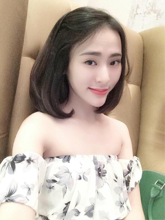 """Thiếu nữ Việt """"lột xác"""" xinh đẹp nhờ tiêm filler 3"""