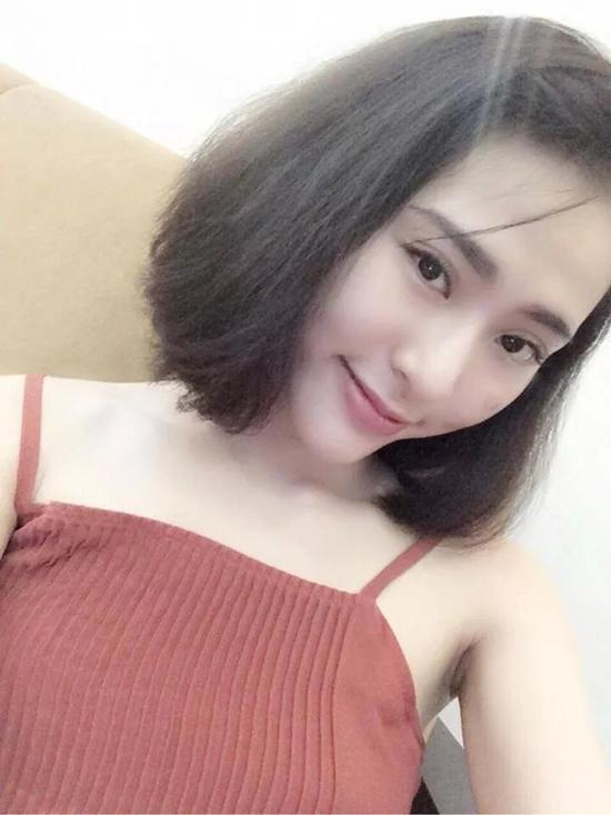 """Thiếu nữ Việt """"lột xác"""" xinh đẹp nhờ tiêm filler 6"""