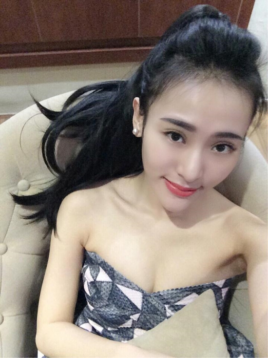 """Thiếu nữ Việt """"lột xác"""" xinh đẹp nhờ tiêm filler 7"""