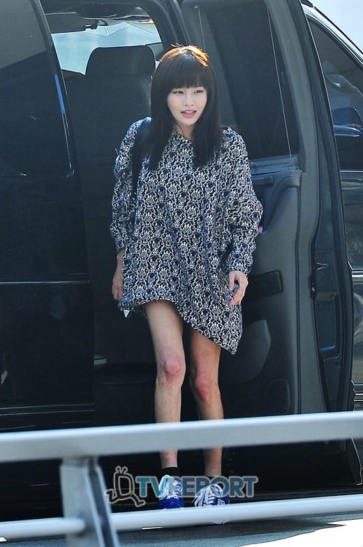 Những sao Hàn sở hữu đôi chân không đẹp 7