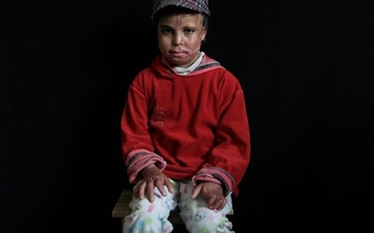 Hình ảnh đau lòng về những đứa trẻ là nạn nhân trong các cuộc tấn công kinh hoàng tại Syria