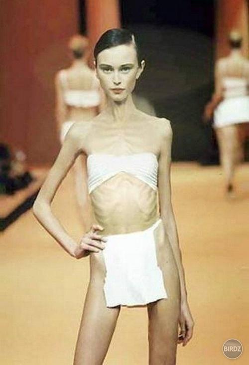 Nhiều người mẫu trên thế giới cũng từng gây sốc vì quá gầy rồi, đâu chỉ riêng gì Cao Ngân! - Ảnh 5.
