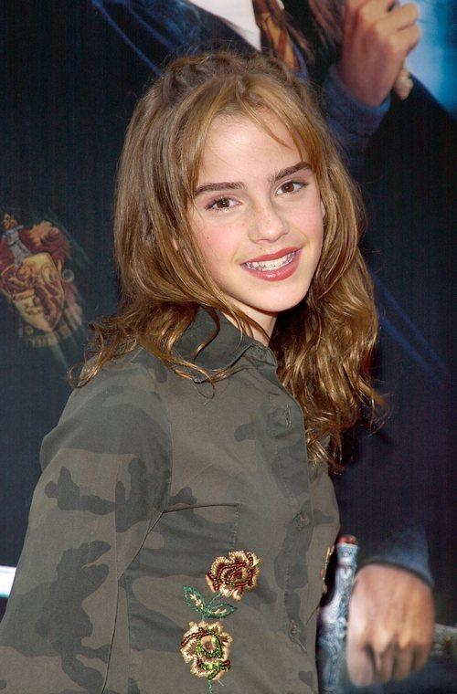 Emma Watson: Hoa hồng đẹp nhất nước Anh giờ bỗng tàn phai nhan sắc nhanh chóng - Ảnh 2.