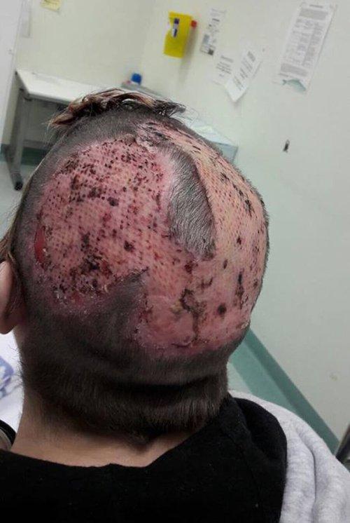 Tự nhuộm tóc màu mè tại gia, cô gái ăn quả đắng vì bị bong hết da đầu - Ảnh 1.