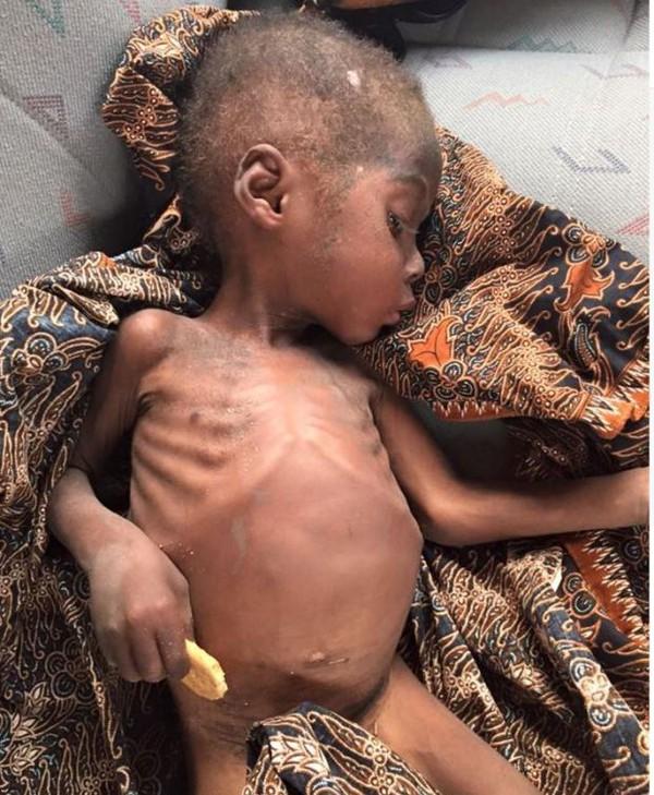 Bức ảnh đau lòng về cậu bé bị bỏ đói đến suýt chết trên đường phố Nigeria - Ảnh 5.