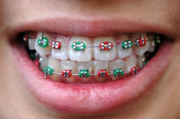 """Sản phẩm lạ: Mốt """"niềng răng"""" giả 4"""