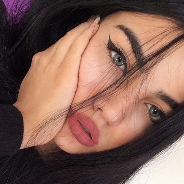 3 kiểu tiêm môi đang được con gái Việt yêu thích nhất & những điều bạn cần tìm hiểu - Ảnh 2.