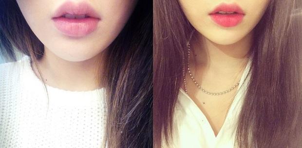 3 kiểu tiêm môi đang được con gái Việt yêu thích nhất & những điều bạn cần tìm hiểu - Ảnh 14.