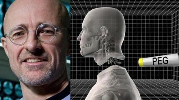 Thông tin mới nhất về ca phẫu thuật ghép đầu người đầu tiên trong lịch sử nhân loại - Ảnh 1.
