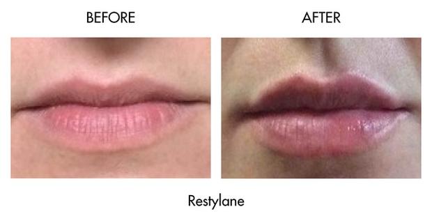 3 kiểu tiêm môi đang được con gái Việt yêu thích nhất & những điều bạn cần tìm hiểu - Ảnh 23.