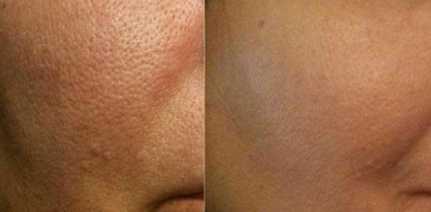 Đắp cà chua lên mặt mỗi tuần, da sẽ biến đổi kì diệu không ngờ - Ảnh 3.