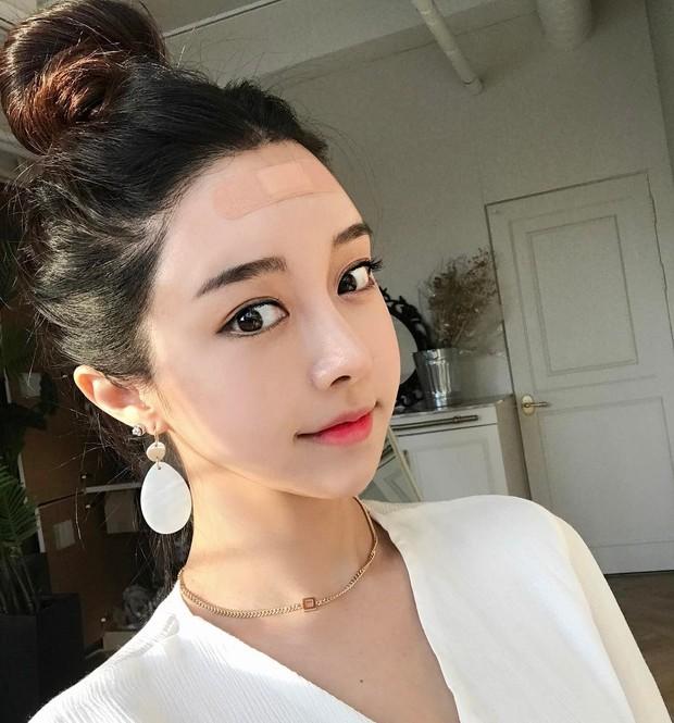 Con gái từ Hàn sang Việt cứ đập cả mặt với tiêm má tròn căng, lẽ nào xu hướng mặt phù sắp tiếm ngôi mặt V-line? - Ảnh 7.