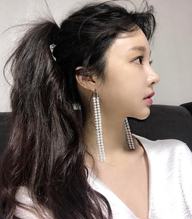 Con gái từ Hàn sang Việt cứ đập cả mặt với tiêm má tròn căng, lẽ nào xu hướng mặt phù sắp tiếm ngôi mặt V-line? - Ảnh 8.