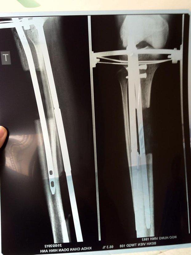 Nhật ký kéo dài chân từ 1m67 đến 1m76 (9 cm) của chàng trai Hà Nội - Ảnh 1.